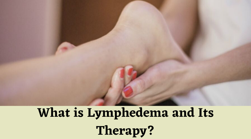 What is Lymphedema and Its Therapy_